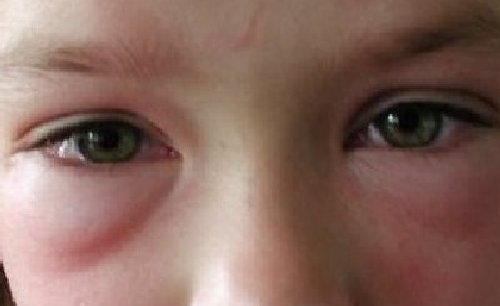 allergische reaktion baby