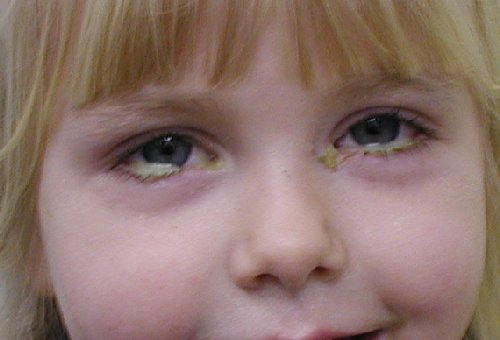 Impetigo - Symptoms, causes and treatment in children and ...